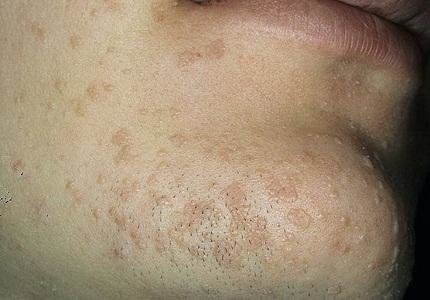 От чего появляются папилломы на шее у женщин лечение