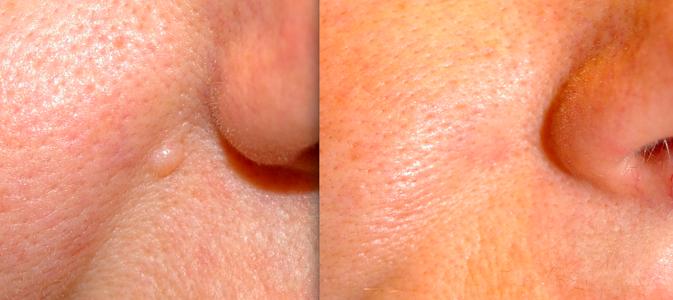 Лечение бородавок с черными точками
